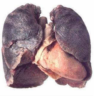 Il fumo smesso dello stomaco ha cominciato crescono